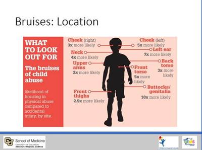 Apr24 Child Abuse webinar.png